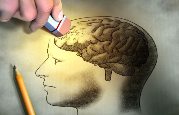 supplements brain health